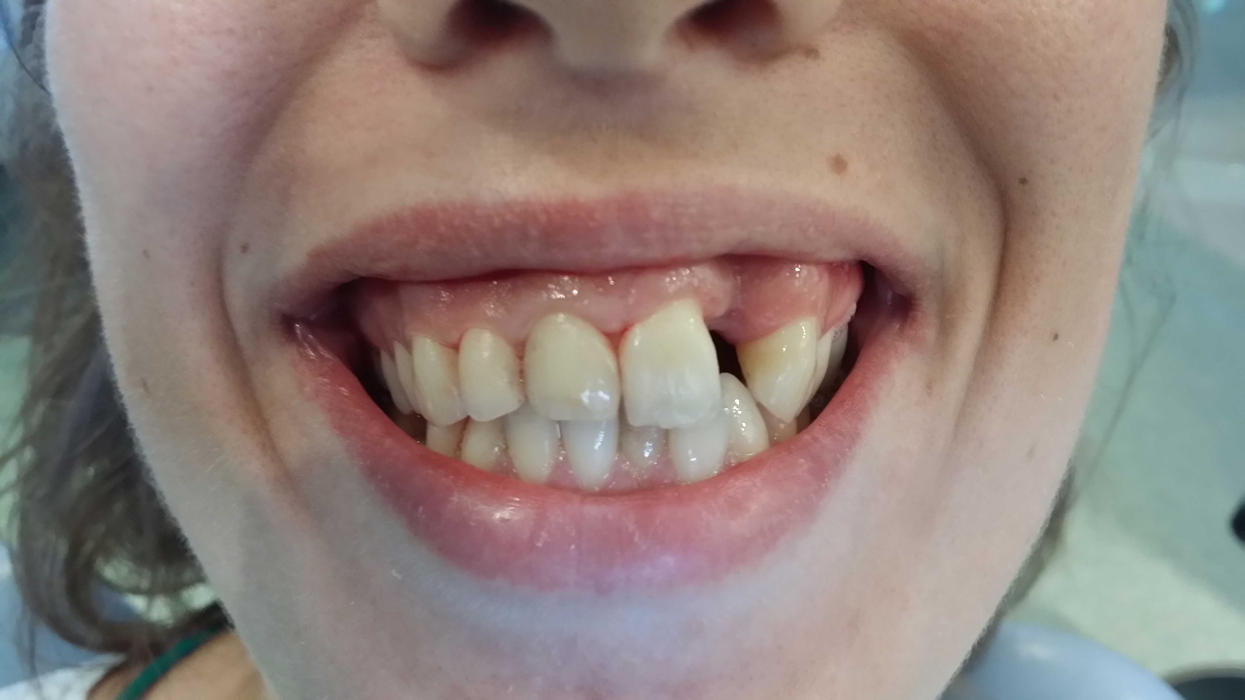 navlake-za-zube-pre