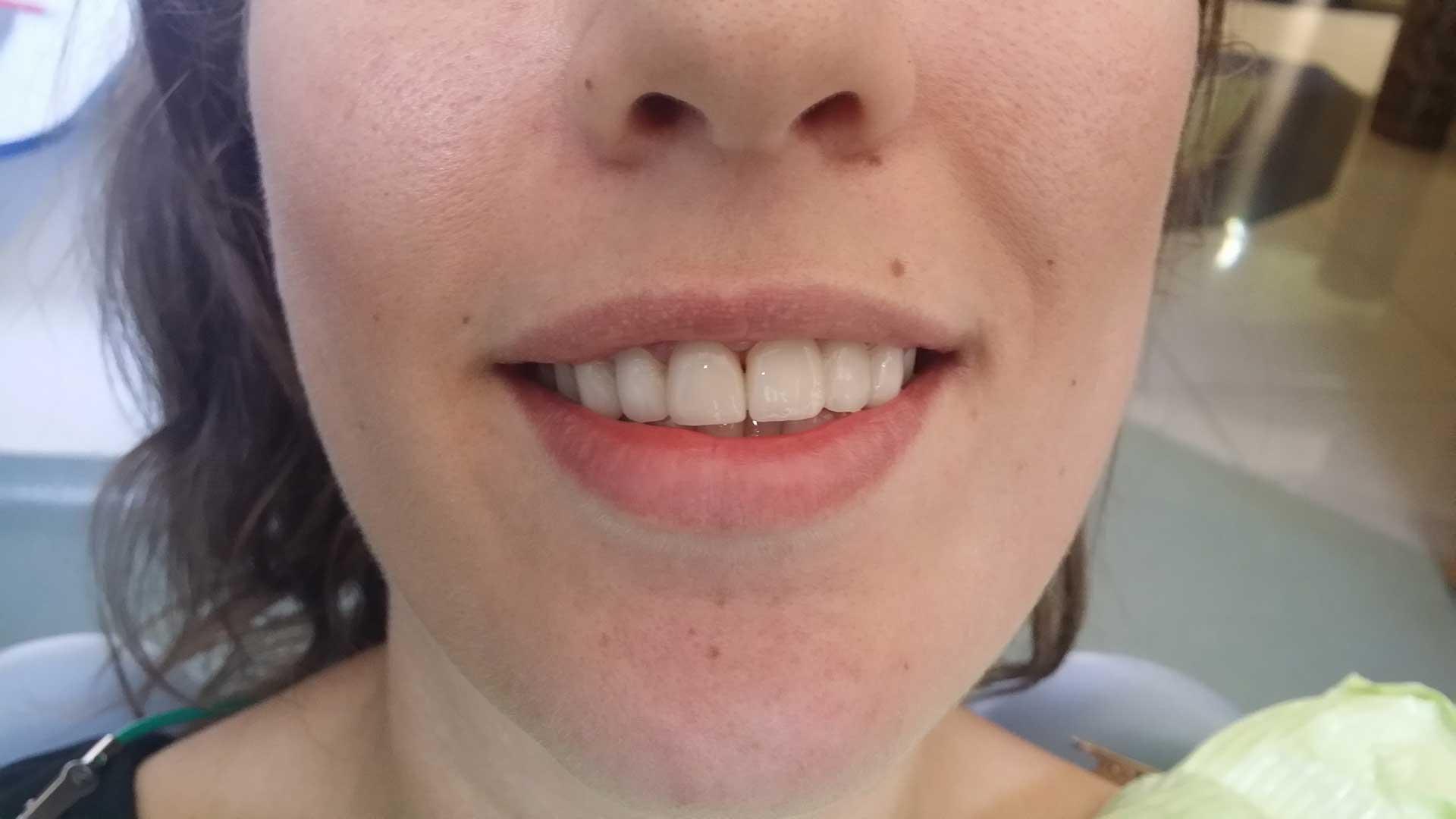 navlake-za-zube