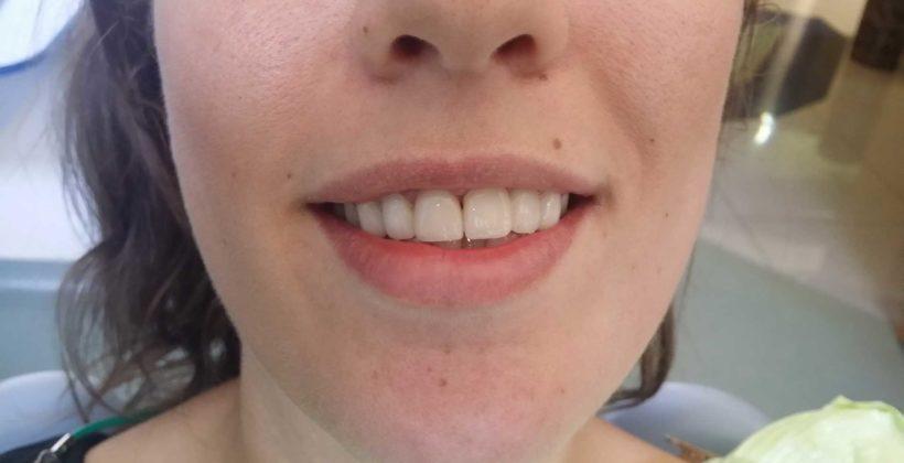 Kada su navlake za zube dobar izbor?