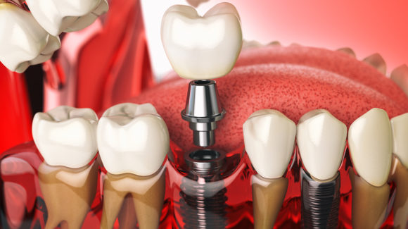 Implantologija – prednosti dentalnih implanata