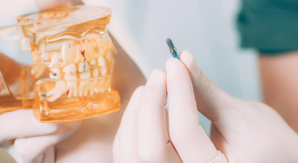 dentalni-implanti