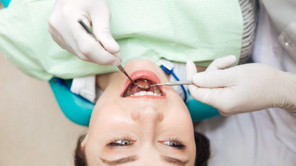 Bela plomba: sve što treba da znate o kompozitnim ispunima pre odlaska kod zubara